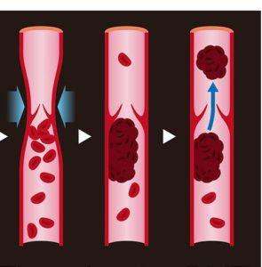 新型コロナウイルス 血管 血栓 深部静脈血栓症 脳梗塞 心筋梗塞